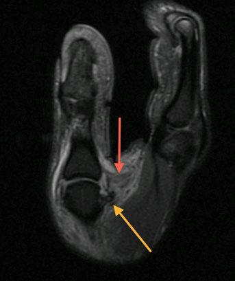 Elbow Treatment Orange CA | Elbow Arthroscopy Surgeries Orange ...
